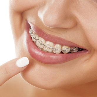 Woman pointing to clear and ceramic braces on teeth