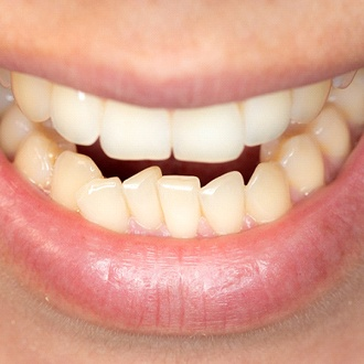 Closeup of mouth with crowded teeth before Hopkinton orthodontist