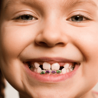 Child's smile with pediatric orthodontics appliance in place