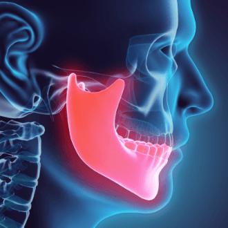 Animated jaw and skull bone used for dentofacial orthopedics treatment planning
